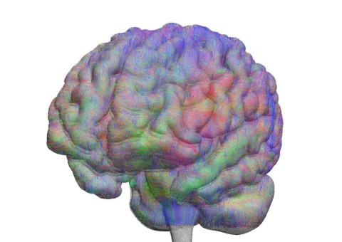 brain_03