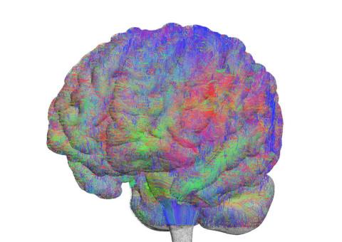 brain_04